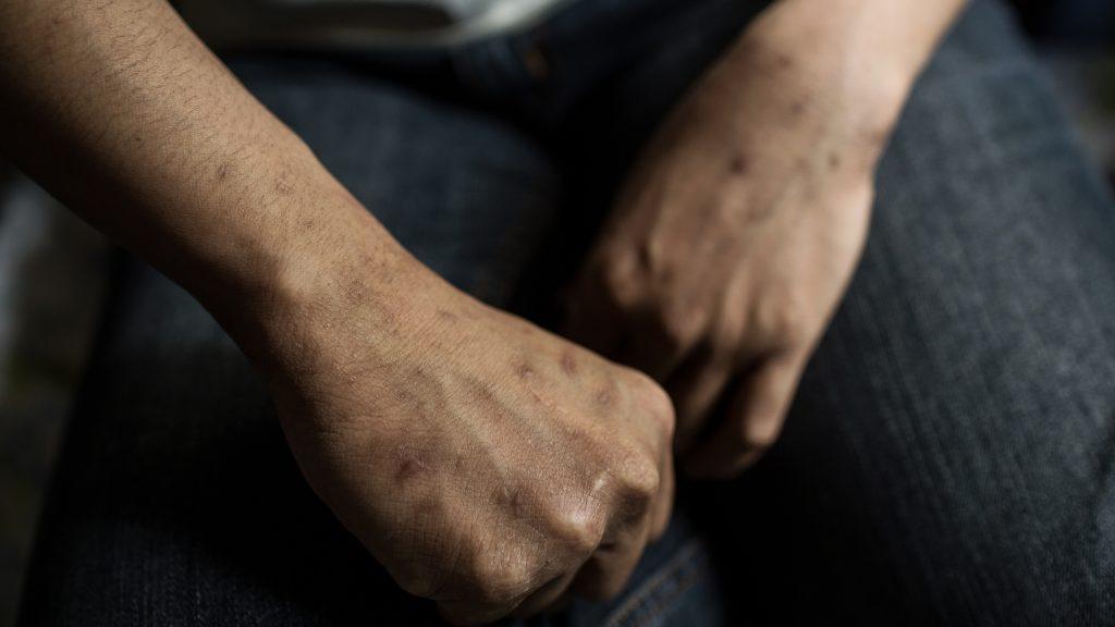 à Hong-Kong, les mains d'une femme violentée